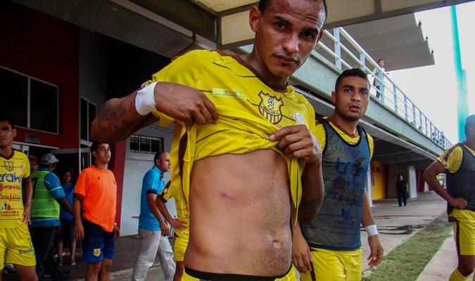 Wildiyonh Vivas muerta una herida por un supuesto disparo de perdigón | Foto: Rafael Araujo